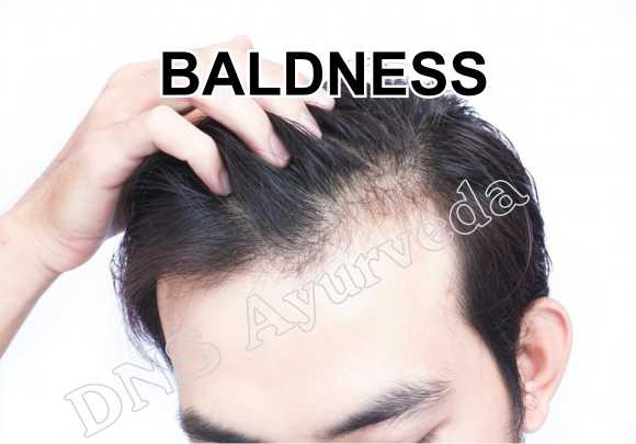 Hair Loss, what is Female condome, Making sex pleasant, First time sex, Sexual Disorders, Best Ayurvedic Clinic in Lucknow, Best Ayurvedic Doctor, Best Ayurvedic Treatment, Sexologist in Lucknow