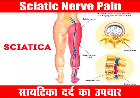 Sciatica Nerve Pain Treatment, eating before sex, Best Ayurveda clinic, Sexologist in lucknow, Herbal clinic, Piles clinic in lucknow