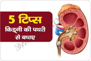 Kidney Stones, Health remedies, Home remedies, DNS Ayurveda, Kidney Ki Pathari