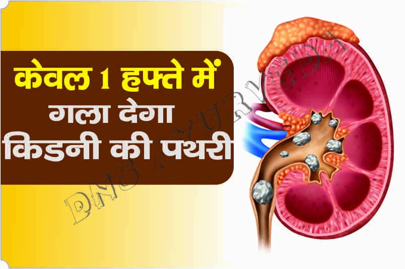 Kidney stone treatment   केवल 1 हफ्ते में गला कर निकाल देगा ये खास नुस्ख़ा