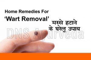 Top 10 home remedies for wart removal